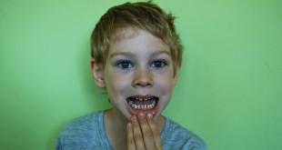 צחצוח שיניים ילדים